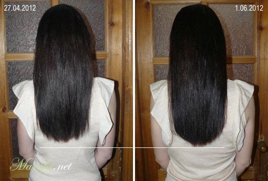 Можно ли ускорить рост волос на голове