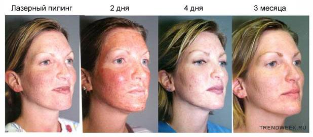 лазерный пилинг до и после фото