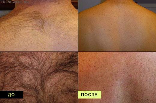 Элос эпиляция когда начинают выпадать волосы
