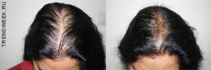 Мезотерапия волос первомайская