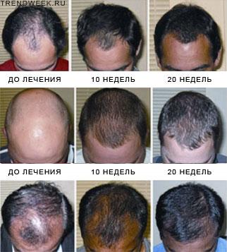 Мезотерапия волос цены